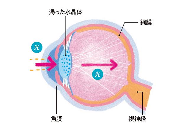 「眼内レンズ」はどう選べばいいの? 医師が教える「白内障の手術」基礎知識