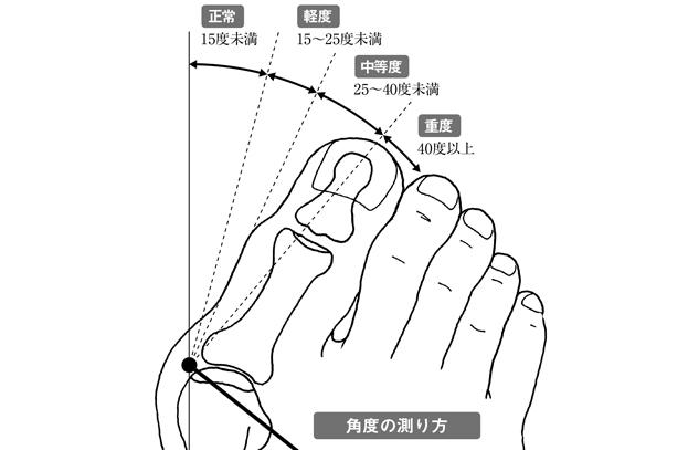 あなたの「重症度」をチェックしてみて。「外反母趾」の基礎知識