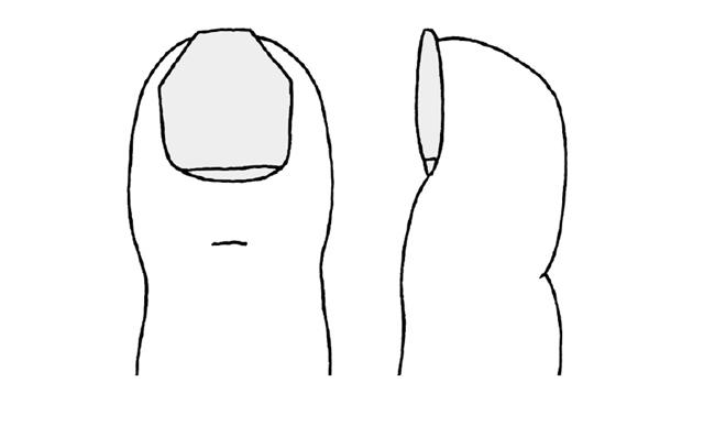 間違った「爪の切り方」していませんか? 医師が勧める「足のセルフケア」