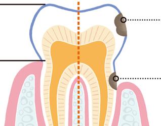 歯を失うことも!? 進行が早い大人の虫歯「根面う蝕」とは?