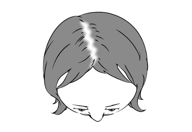 ヘアサイクル、乱れていませんか?「女性の薄毛」の基礎知識