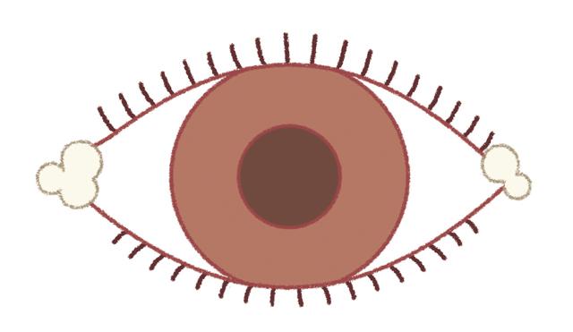 ○○な場合は要注意!知っておきたい「目やに」の基礎知識