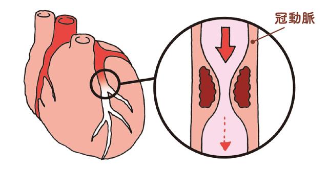 放置すると悪化し心筋梗塞にも...50代から要チェックの「冠動脈疾患」とは