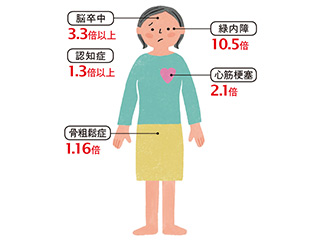 閉経後の女性の70%以上が血圧が高め!? 高血圧のリスクと改善に大切な「NO」と「カリウム」とは?
