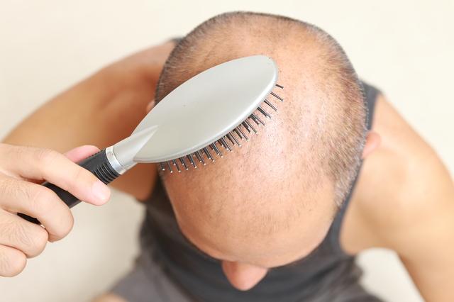 ブラシで頭を叩くと髪が生える! 刺激は強いほどいいの?/抜け毛予防
