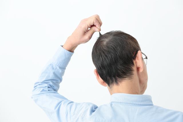 薄毛の治療薬。本当のところ効果はどのくらい?/抜け毛予防
