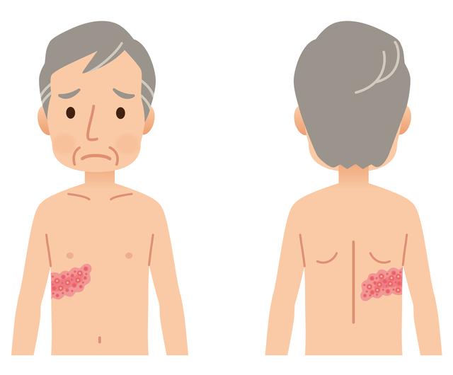 水疱が、胸や背中に帯状に広がる。「帯状疱疹」はなぜ起こる?/帯状疱疹