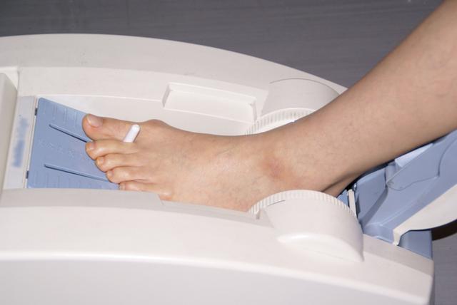 病院での骨粗鬆症検査は、エックス線と骨密度測定が基本/圧迫骨折