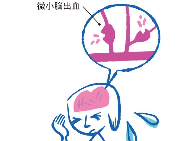 知らないうちに起こる「微小脳出血」や「慢性腎臓病」も認知症のリスクに!