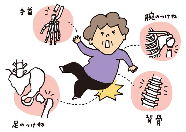 60歳以上の女性に多い「骨粗しょう症」。予防には食事療法がもっとも効果的/やさしい家庭の医学
