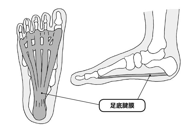 立ち仕事が多い人は注意!40歳以上がなりやすい「足底腱膜炎」の基礎知識