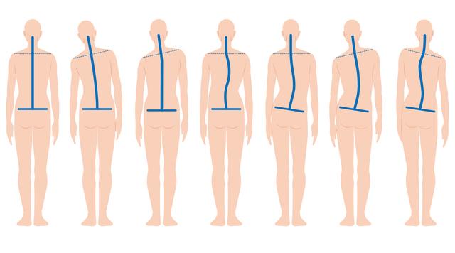 手指の病気には首、肩、腰の位置が関係している! 正しい位置をチェック