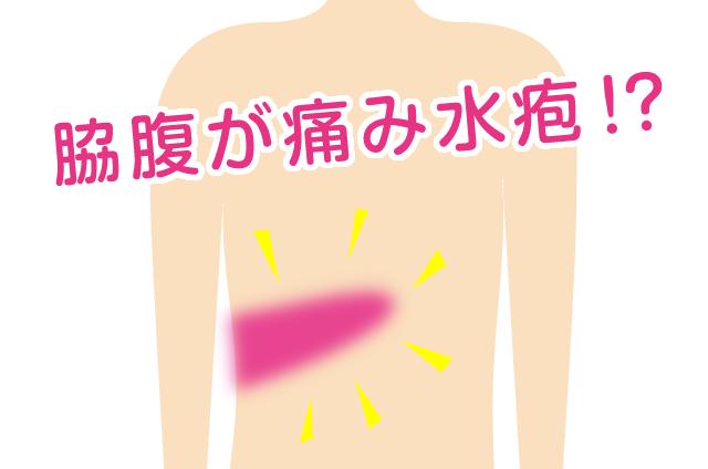 脇腹が痛み水疱ができた。まるで火傷したような状態/高谷典秀先生「なんでも健康相談」