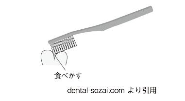 「磨く=こする」ではない! 歯科医師が伝えたい「歯磨きに対する最大の誤解」