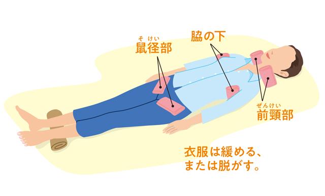 熱中症は命の危険も! 熱中症時の体を冷やすための4つのポイント