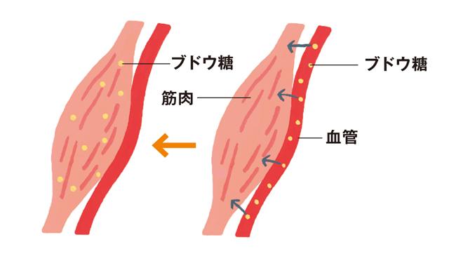 ご存じですか?糖尿病を引き起こす「霜降り筋肉」と「脂肪肝」