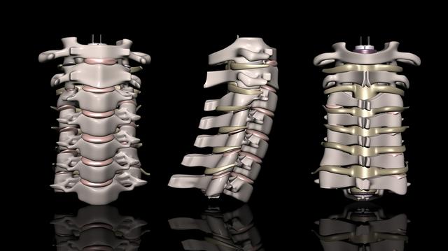 首の痛みに関係する「頸椎(けいつい)」ってどこにあるの? 手術をしなくても改善する?