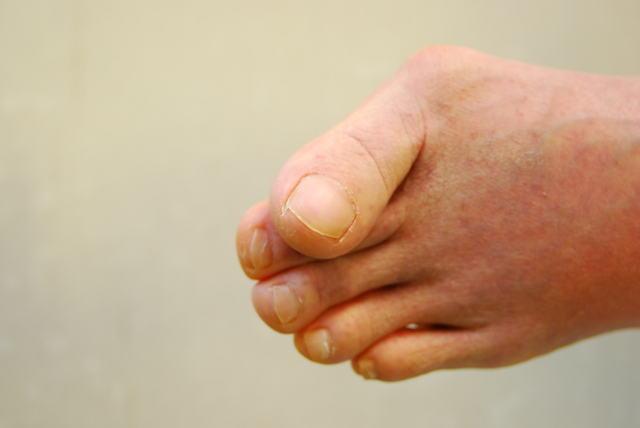 甘く見ないで! 「外反母趾」は下肢機能の低下につながる/ご存じですか?外反母趾(1)
